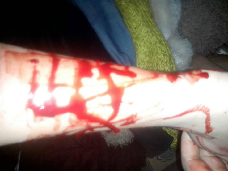 女生 自残 割 腕 照片 自残 割