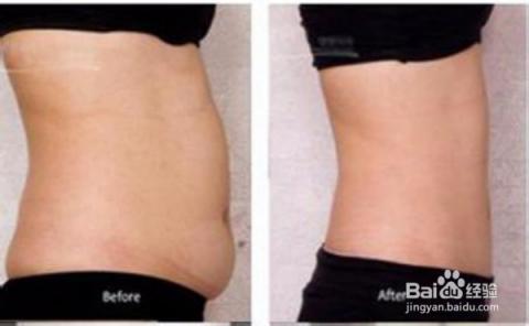 然而减肥瘦脸中脂肪消耗的也是脂肪的四肢,然后是腰腹的最先,减肥是注射过程针后肉图片