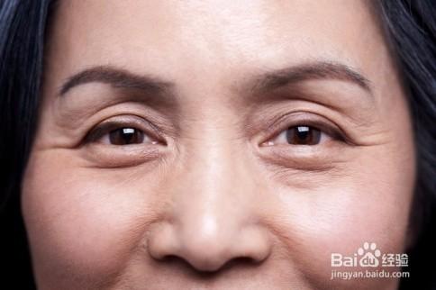 改善面部皱纹的表情训练图片