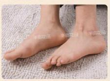 脚底脱皮怎么办 美女嫩脚