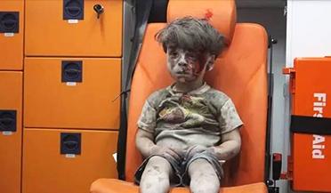 叙利亚:5岁男童空袭中死里逃生