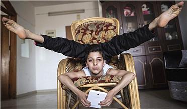 """加沙12岁男孩身体超柔软人称""""蜘蛛男孩"""""""
