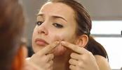 如何摆脱痘印和痤疮疤痕?别瞎来!这6种方法可有效缓解或治愈!
