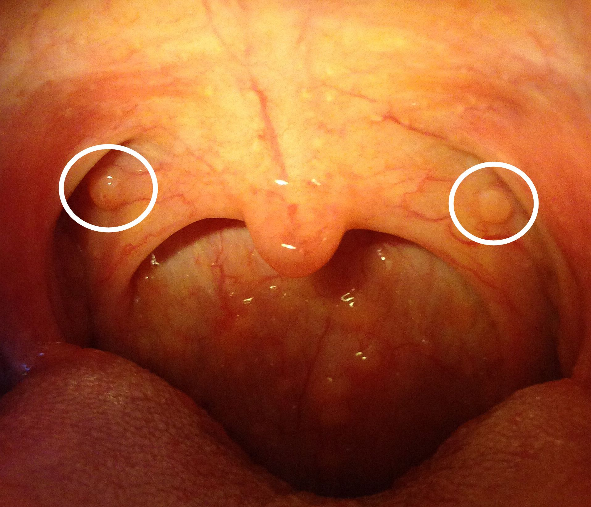 ,有疙瘩_咽炎喉咙里有大疙瘩_喉咙内壁长疙瘩图片 ...