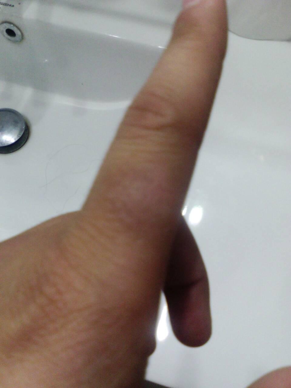 我是个12岁的女孩 我手指骨节的下面 手指上>起了一