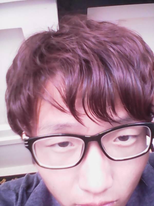头发稀,脑门前还有个旋图片