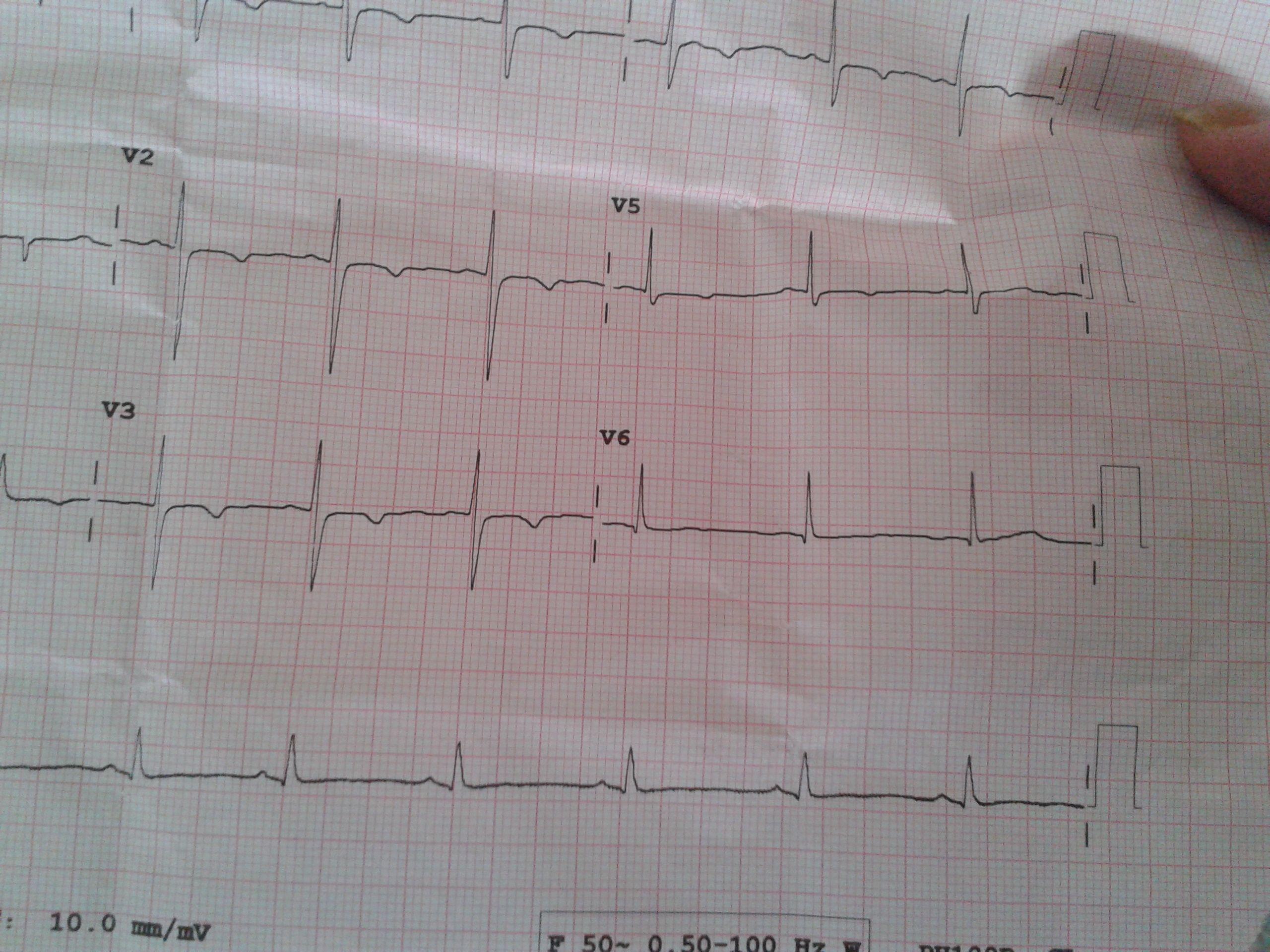 心电图窦性心律,电轴右偏,非特异性广泛导联复极异常,导联基线漂移,这些说的什么?_百度知道