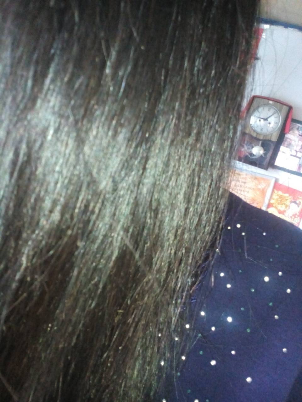 头发很干燥有枯黄,还有白头发,该怎么办呢?