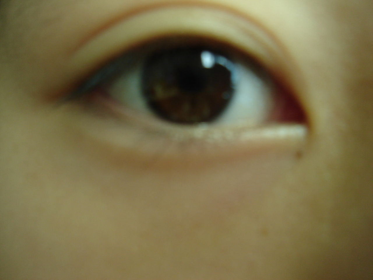 眼睛哭肿了怎么办