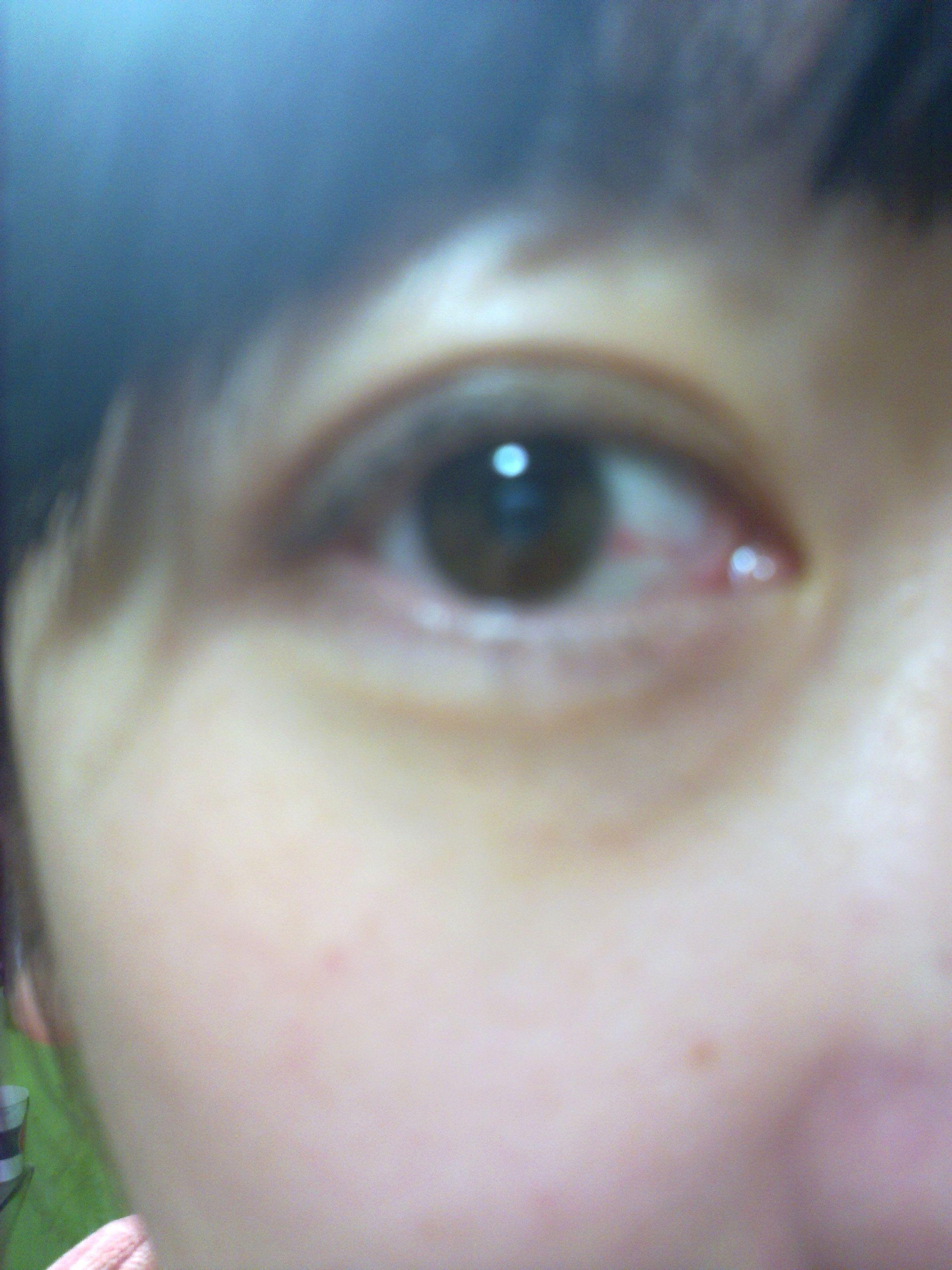主要症状等): 照镜子突然发现眼睛有红血丝 就像图上从眼角到眼珠的白图片