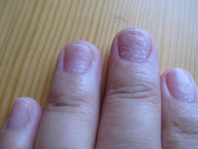 手指甲有横纹,坑坑哇哇的,好像是生完宝宝开始的,这种图片