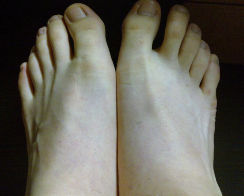 为什么女孩的脚白白嫩嫩的?