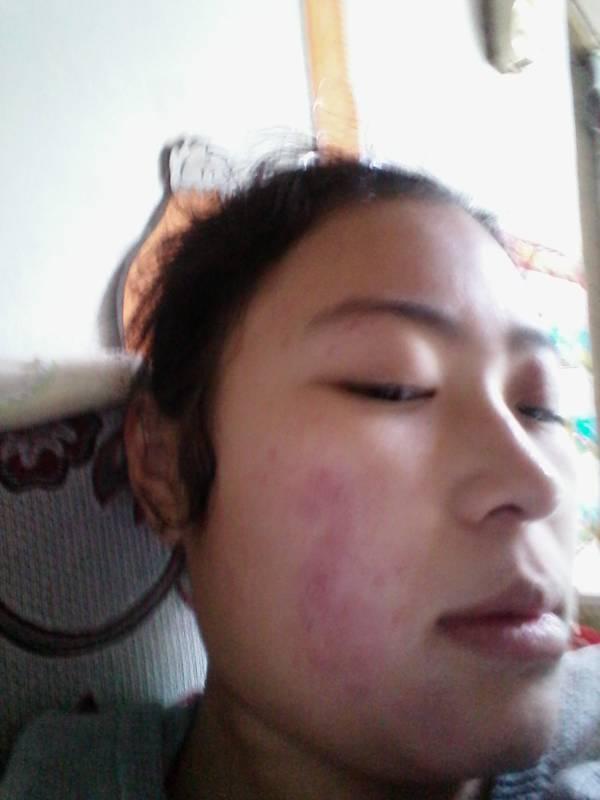 新鲜的柚子皮擦脸有什么?对皮肤有危害吗? 实录 快速问医生