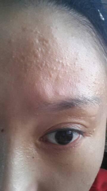 脸上有小米粒疙瘩_脸上起一层小疙瘩,摸起来有凸出感,额头,左脸颊都是,下巴也有,开始