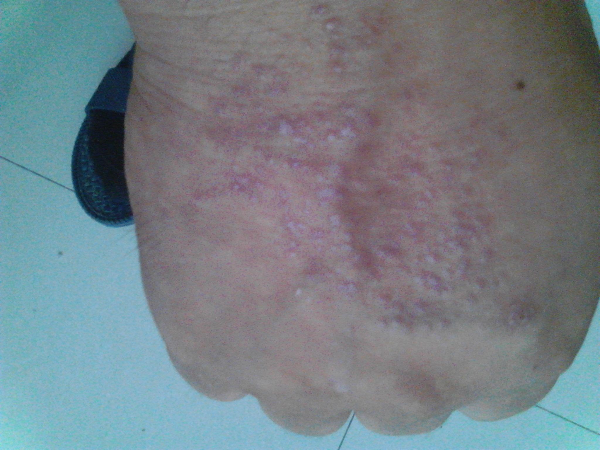 手背上皮炎引起真菌感染怎么治