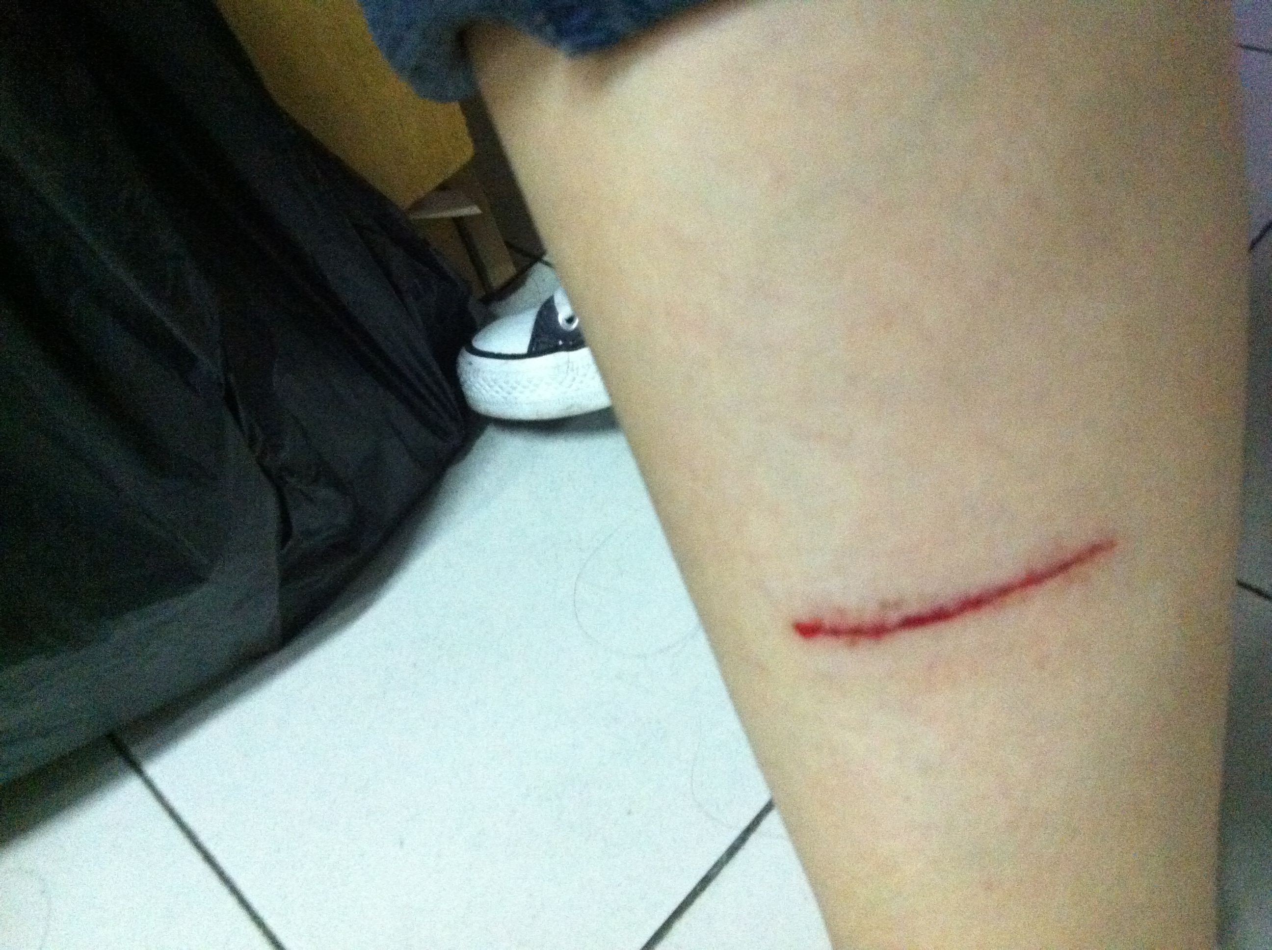 手被刀割流血的囹�a_游泳的时候磕破了,要不要打破伤风?