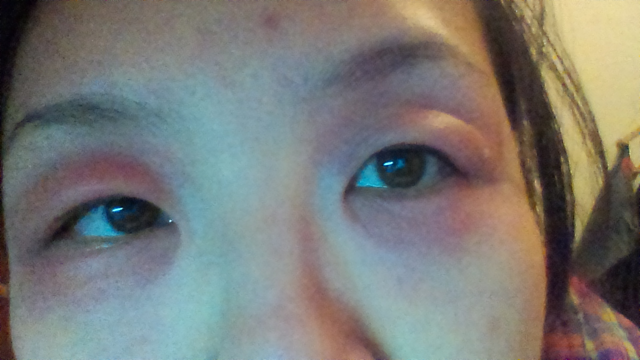 化妆品过敏的症状_化妆品过敏症状是什么