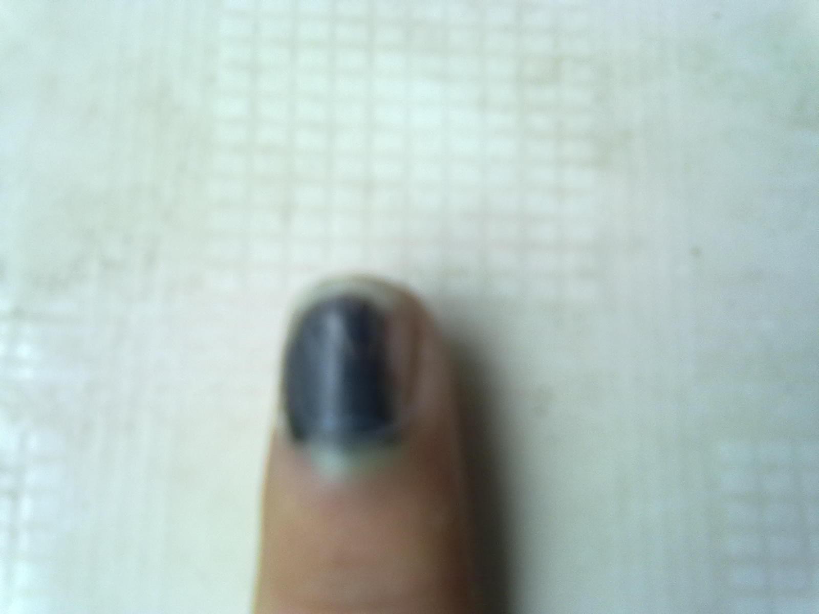 同问手指甲有淤血怎么办