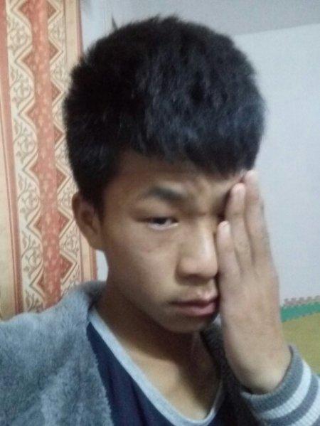 男生15岁脸上长痘痘怎么让他消失