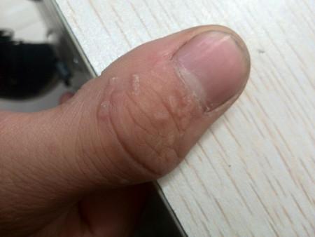 手上这些疙瘩是什么皮肤病?图片