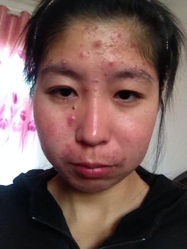 脸上有小米粒疙瘩_我脸上好多痘痘都发炎了 好多痘疤 痘印 用马油能恢复