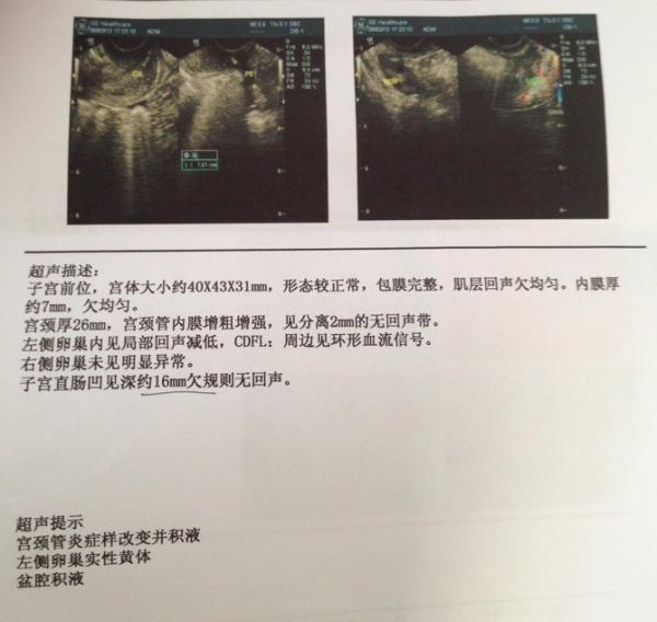有图 在妇科医院检查带回的报告单,请问与诊断的有出入吗 用