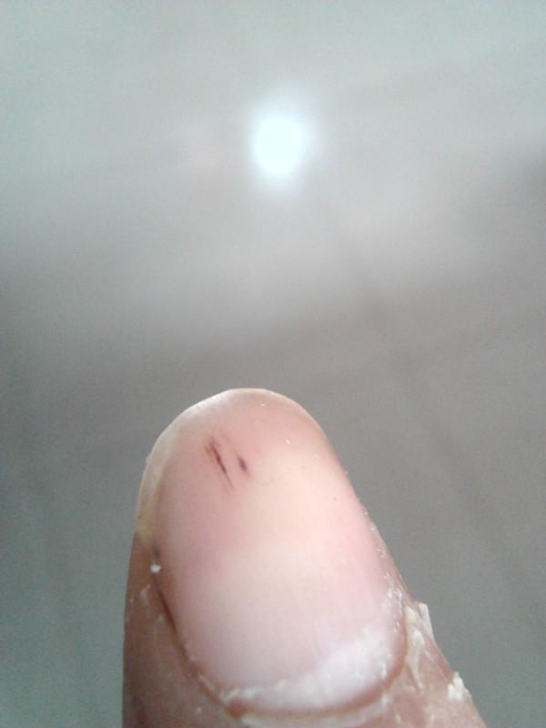 小弟手指甲有纵向血丝颜色的条纹,求砖家给看看这是怎么回事