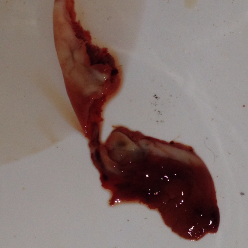 ... 流血真实图 月经流血过程图册 处nu膜被捅流血图片