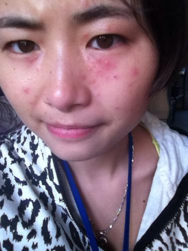 疱疹是长我脸上这样吗 如果真的是疱疹要注