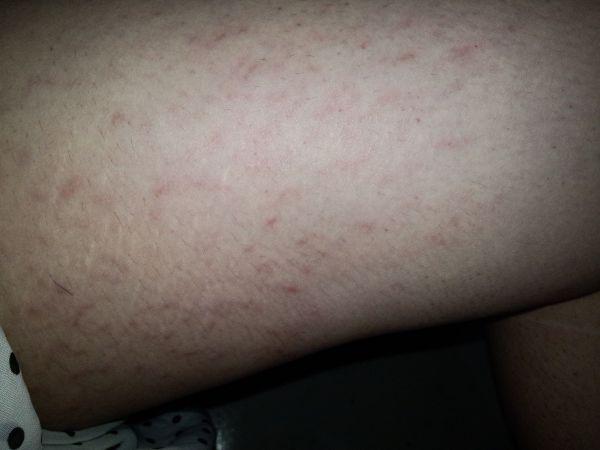 大腿内侧长了一大片红疙瘩,不痛不痒,是什