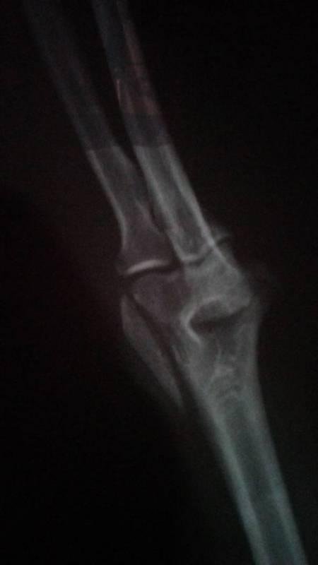 胳膊肘骨头掉了一块还能接上吗,最好的治疗图片