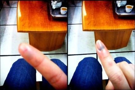 手指扭伤肿了怎么办